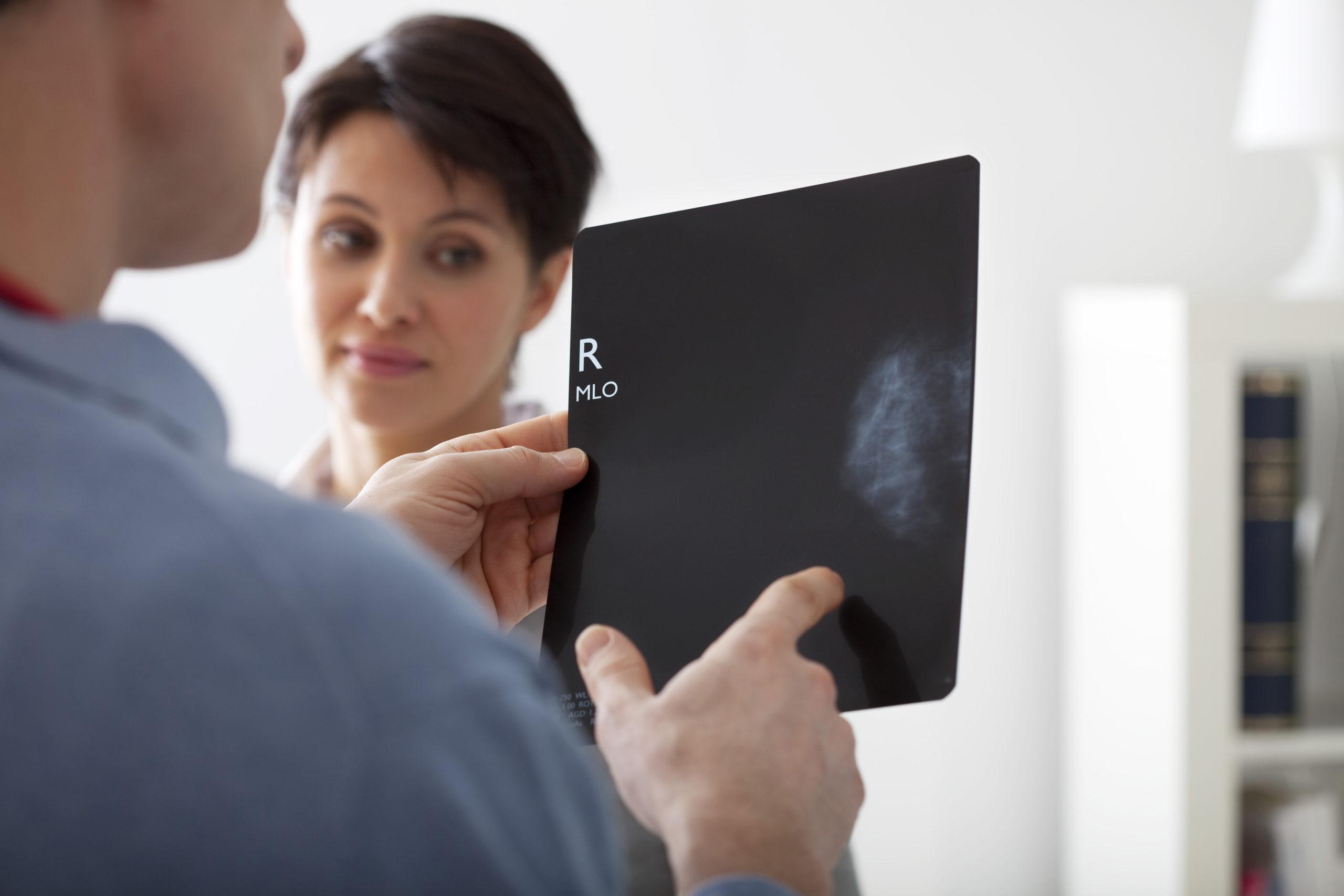 Alterações da mamografia