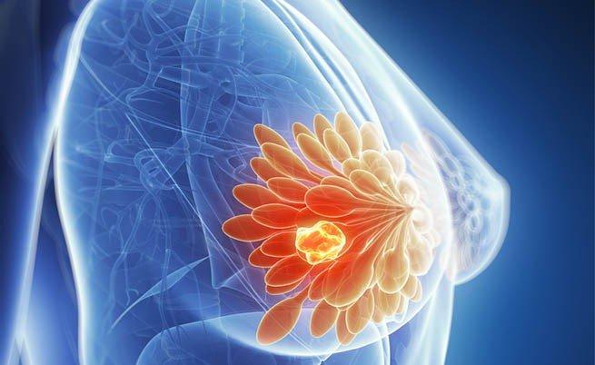 O que é biópsia percutânea?