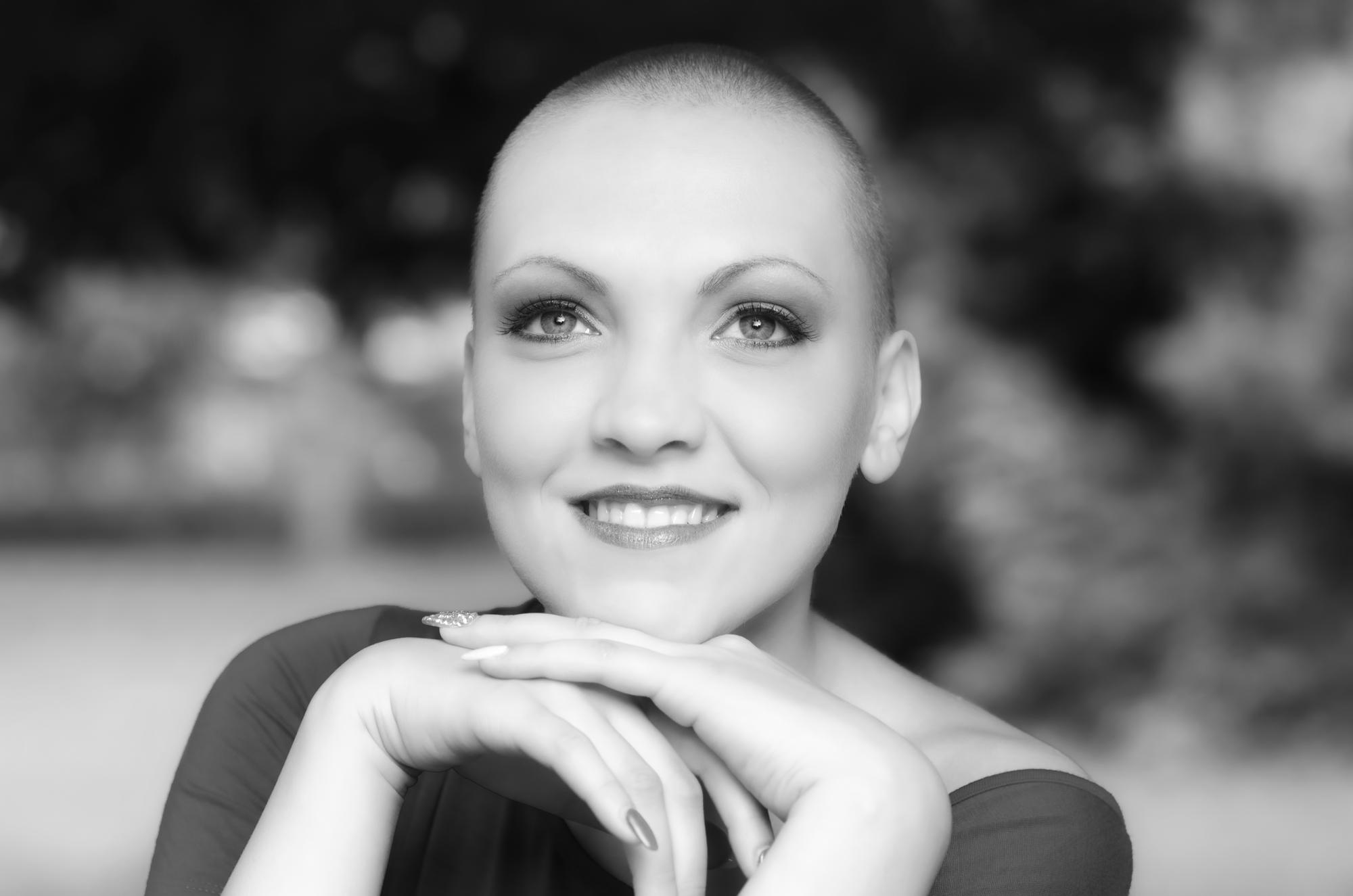 Alopecia induzida por quimioterapia
