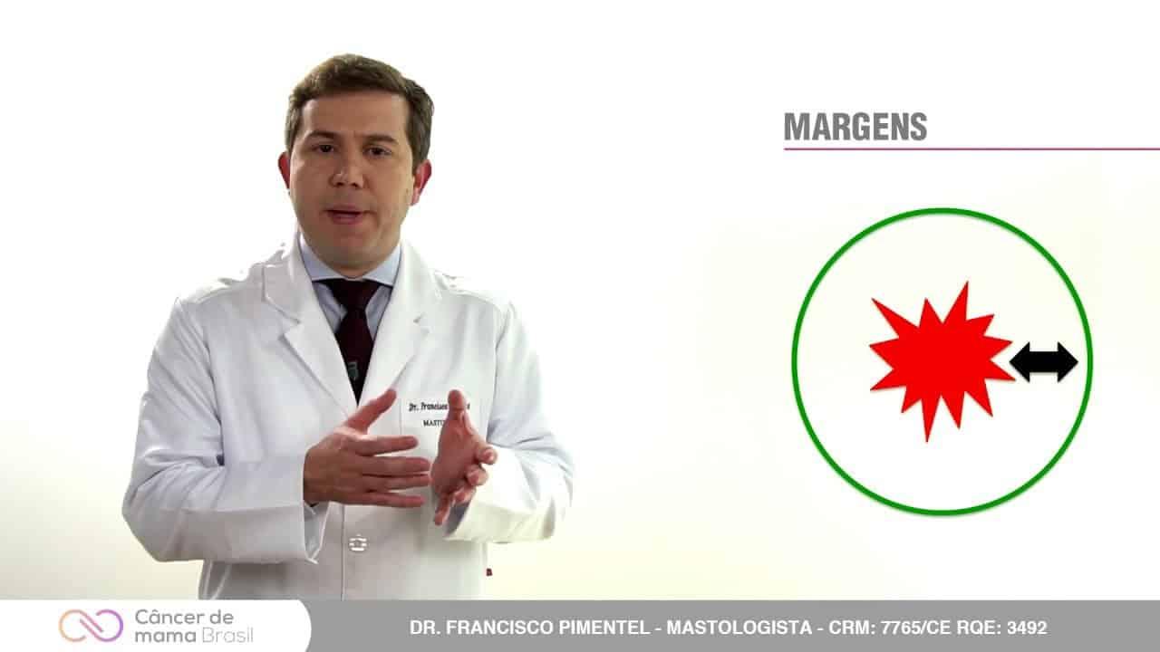 Cirurgia conservadora (Quadrantectomia) ou Mastectomia?