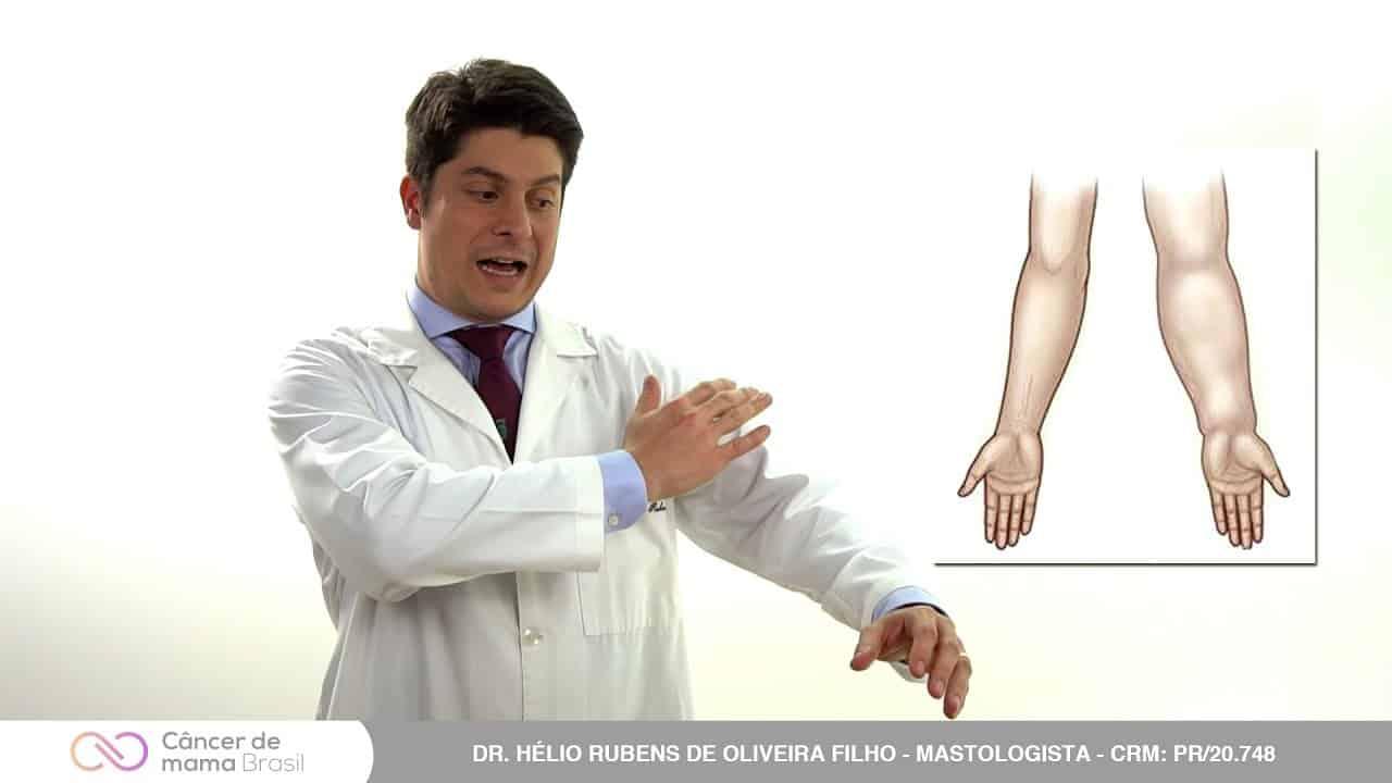 O que é a biópsia do linfonodo sentinela?