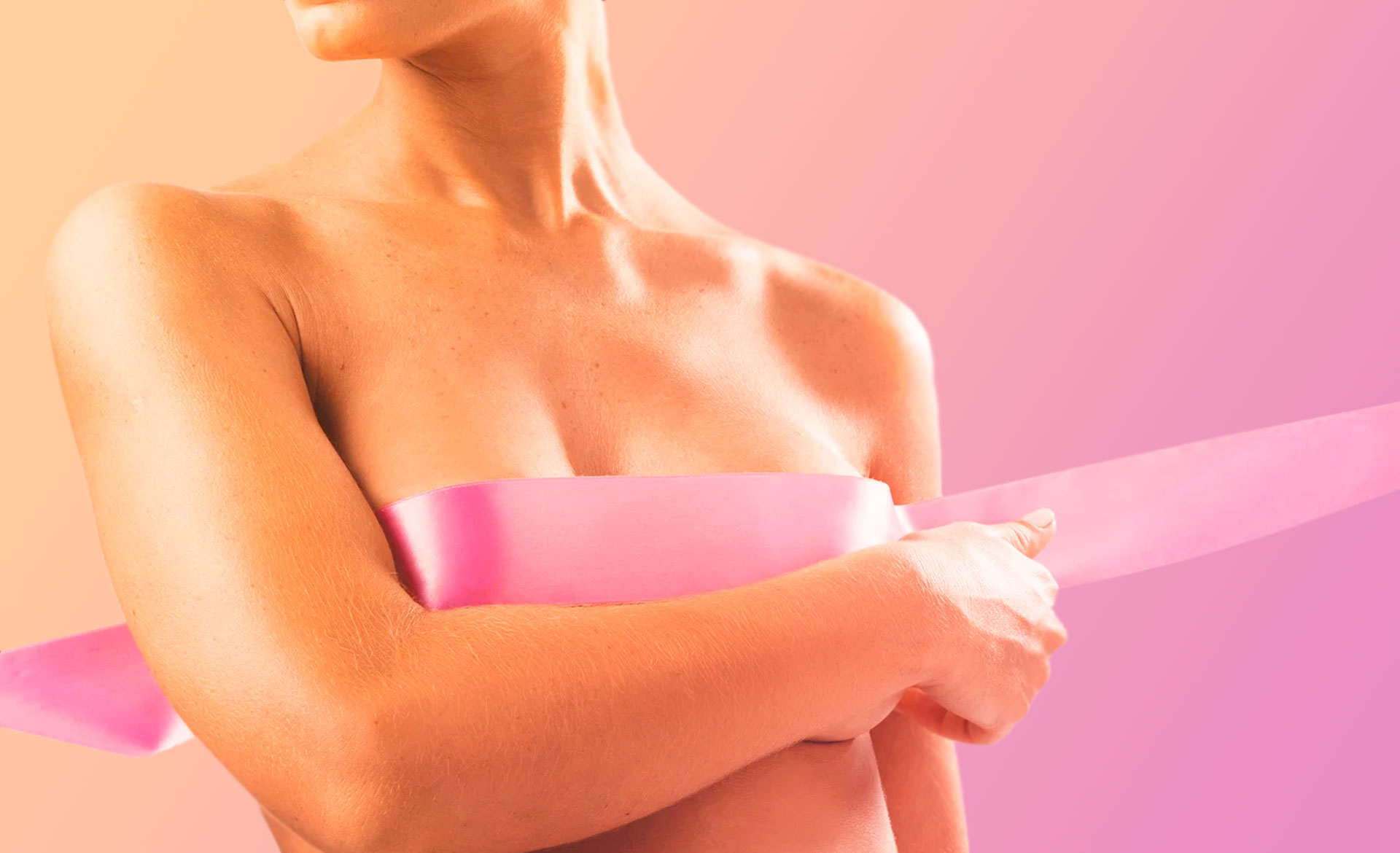 Reconstrução Parcial da Mama Pós-Quadrantectomia