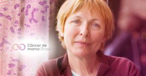 Tenho carcinoma invasivo de mama de tipo não especial com achados medulares, e agora?