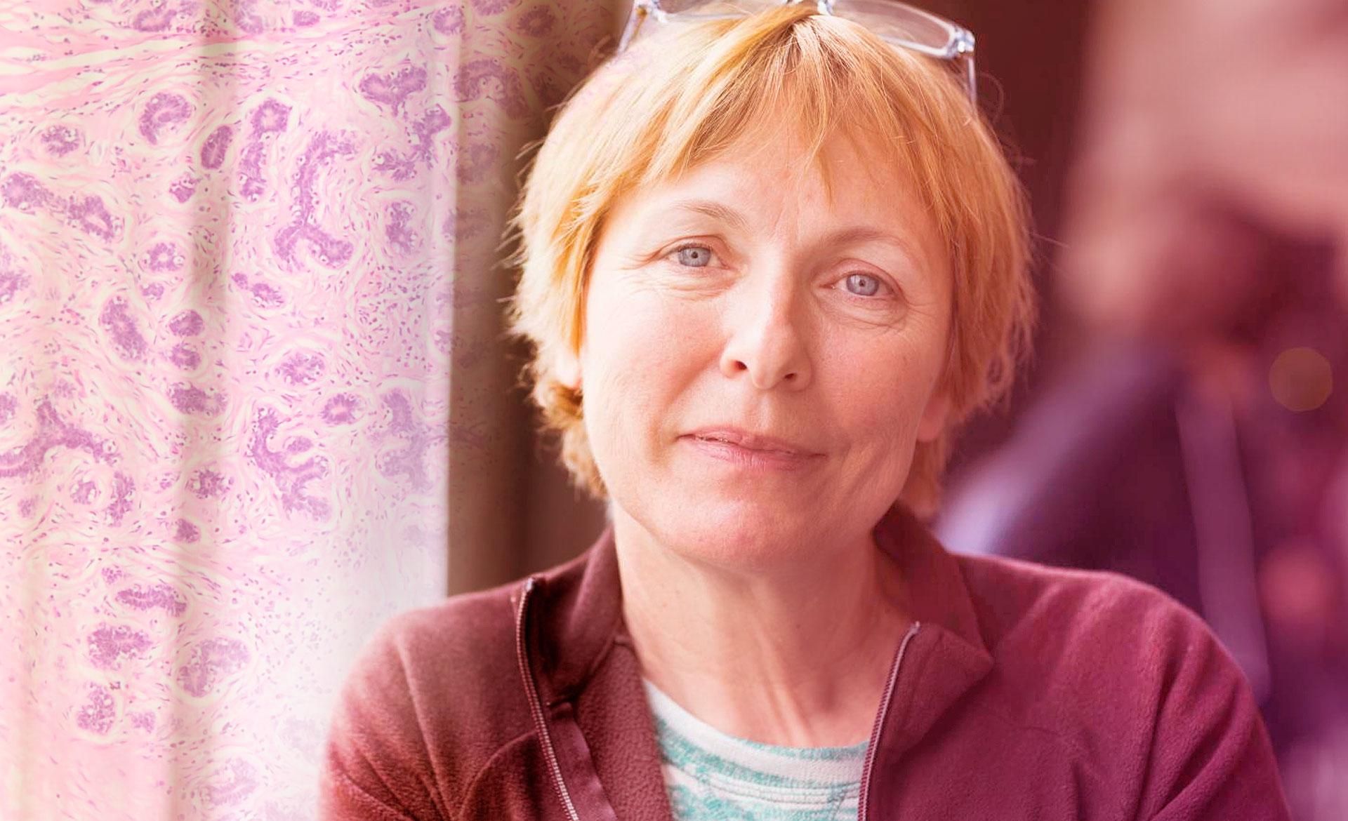 O que é o carcinoma invasivo de mama de tipo não especial com achados medulares?